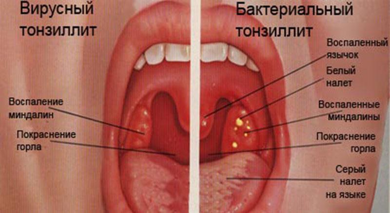 Вирусный тонзиллит