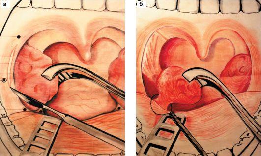 Тонзилэктомия гланд