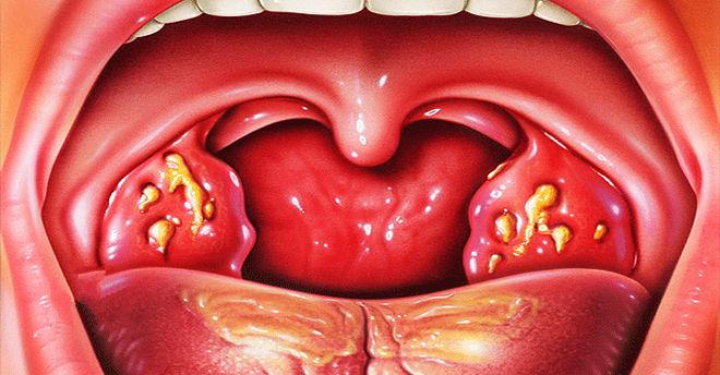 диагностика гнойничков в горле