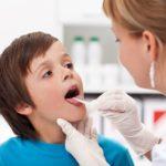 Что делать, если обнаружили гнойнички в горле: современные методы и народная медицина