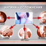 виды осложнений после ангины
