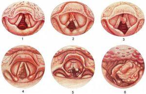 стадии рака горла