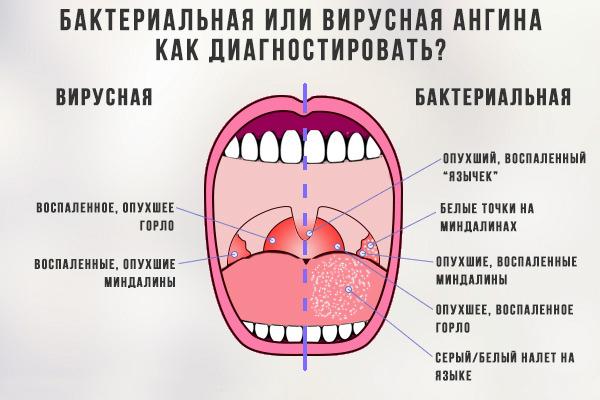 отличие бактериальной и вирусной