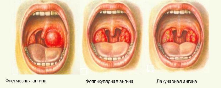 формы гнойной ангины