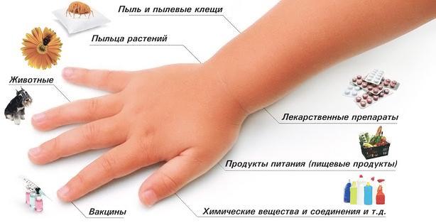 Причины аллергического ларингита