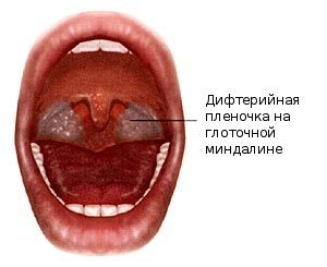 Что происходит во рту при дифтерии