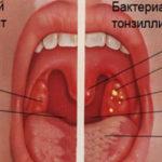 Симптоматика и методы лечения вирусного тонзиллита