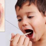 Эффективные таблетки при ангине: антибиотики, для рассасывания, для полоскания