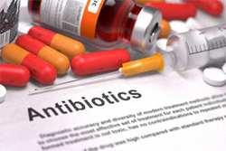 антибиотики при тонзиллите