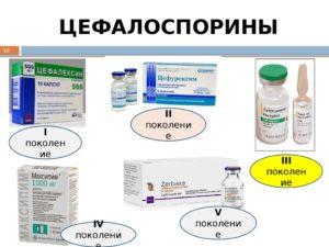 цефалоспорины при тонзиллите