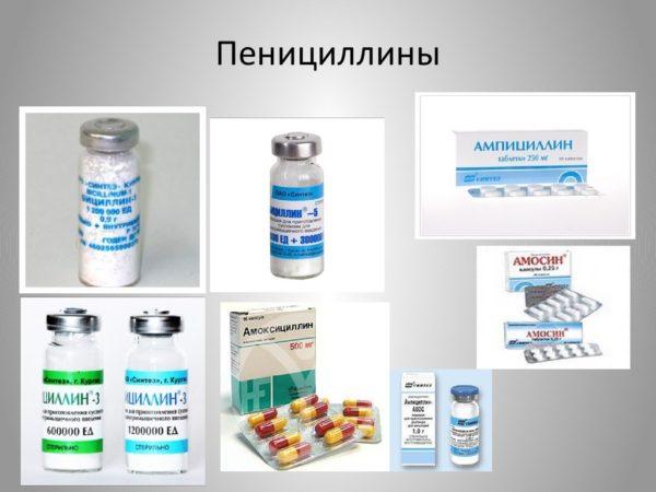 пенициллины при тонзиллите