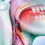 Как определить рак горла, причины и признаки заболевания, диагностика