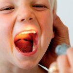 Чем лечить воспаление горла: популярные препараты и народные средства