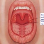 Нужно ли лечить катаральную ангину, способы лечения, возможные осложнения