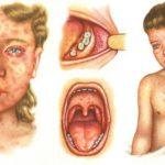 Как лечить скарлатину, первые симптомы, возможные осложнения