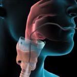 Биопсия горла: как проходит процедура, кому назначается, результаты