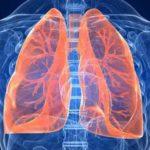 Кашель при саркоидозе легких: причины появления и методы лечения