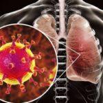 Кашель при коронавирусе: как отличить от обычного ОРВИ